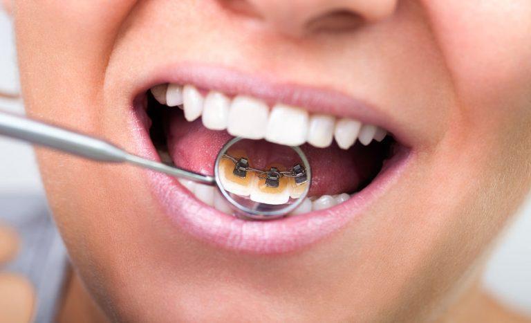 Linguale Zahnspange